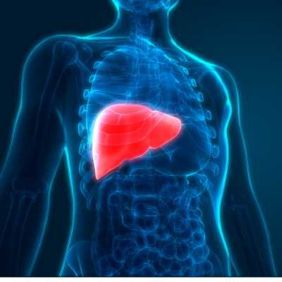 Nonalcoholic Steatohepatitis (NASH)